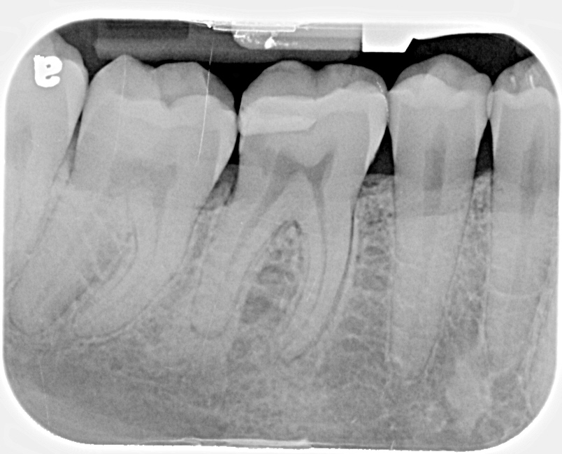We Might Feel That Cavity With An Instrument If The Soft Area Of Tooth Was Large Enough But Wed Never See It Its Under Gums