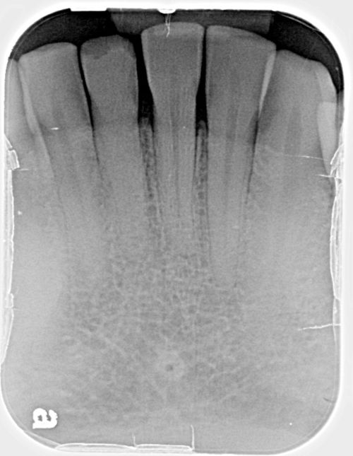 Calcified Pulp Xray