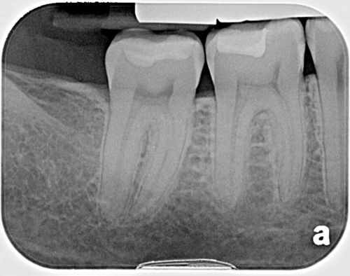 Interproximal caries small