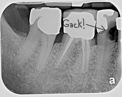 Interproximal caries large arrow