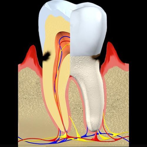 DDSGP root caries 01