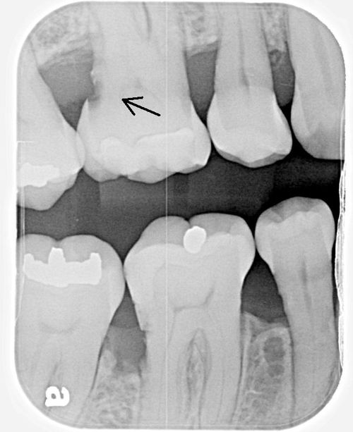 Interproximal caries uneven large