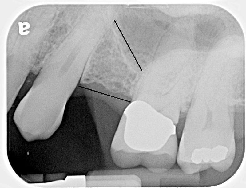 Bone Loss Intertooth 01a