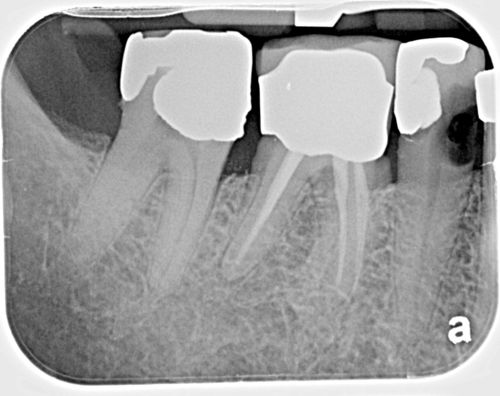 Interproximal caries large