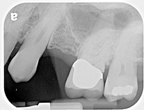 Bone Loss Intertooth 01