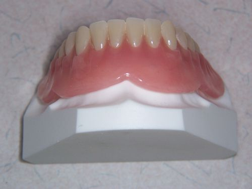 Implant Denture Support 004
