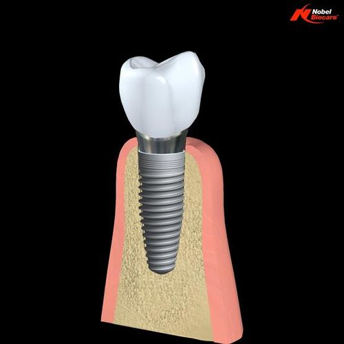 Implant Component Stack 02