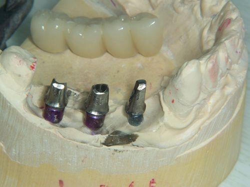 Implant Pontic 002