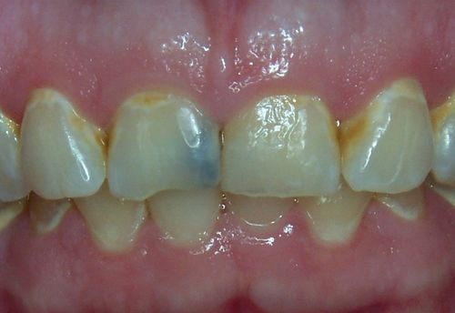 Caries Fluoride